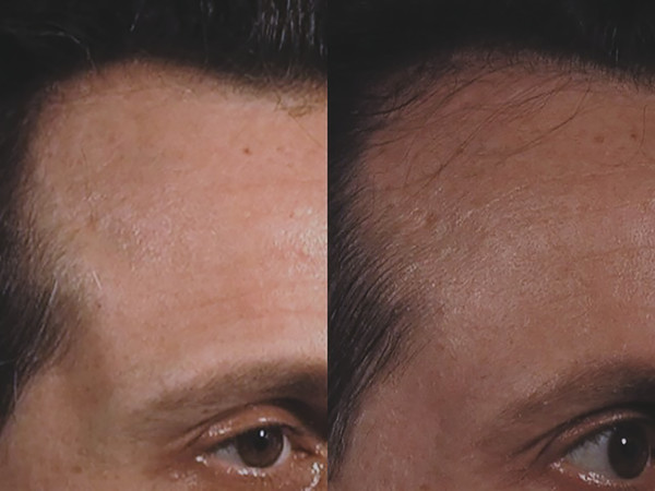 Androgenic alopecia at baseline (left) and 3 months after third monthly microneedling session without concomitant topical therapy (right).