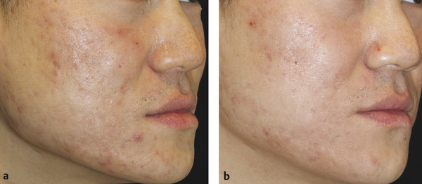 Atrophic facial acne scars at (a) baseline and (b) 6 months after three microneedling sessions at monthly intervals.