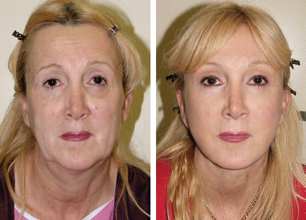 Chapter 23 SIMULTANEOUS FACELIFT AND FAT GRAFTING ...