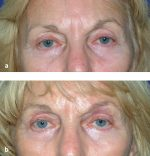 23 Brow Rejuvenation