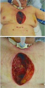 Sternal Wound Infection