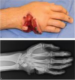 Soft-Tissue Defect of the Hand