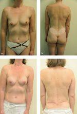 8 Free Lumbar Artery Perforator Flap for Autologous Breast Reconstruction