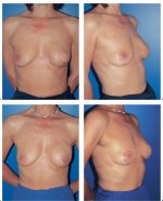 7 Reconstruction of the Nipple–Areola Complex