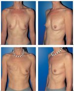 9 Modified Radical Mastectomy