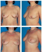 11 Immediate Reconstruction of the Breast