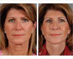 2 Facial Fat Compartments