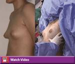 Autologous Fat Transfer Breast Augmentation
