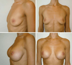 Evidence-Based Medicine: Augmentation Mammaplasty