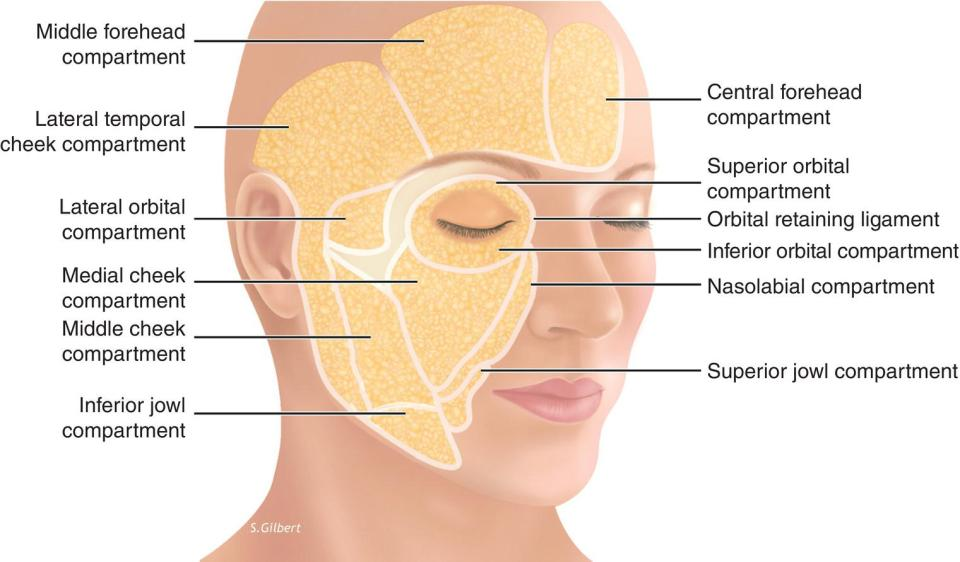 3D Diagram of a woman's face illustrating the superficial fat compartments with lines marking middle forehead compartment, lateral temporal cheek compartment, lateral orbital compartment, etc.