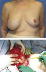 16 Breast Implant–Associated Anaplastic Large Cell Lymphoma
