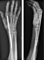 45 Bridge Plating of Distal Radius Fractures