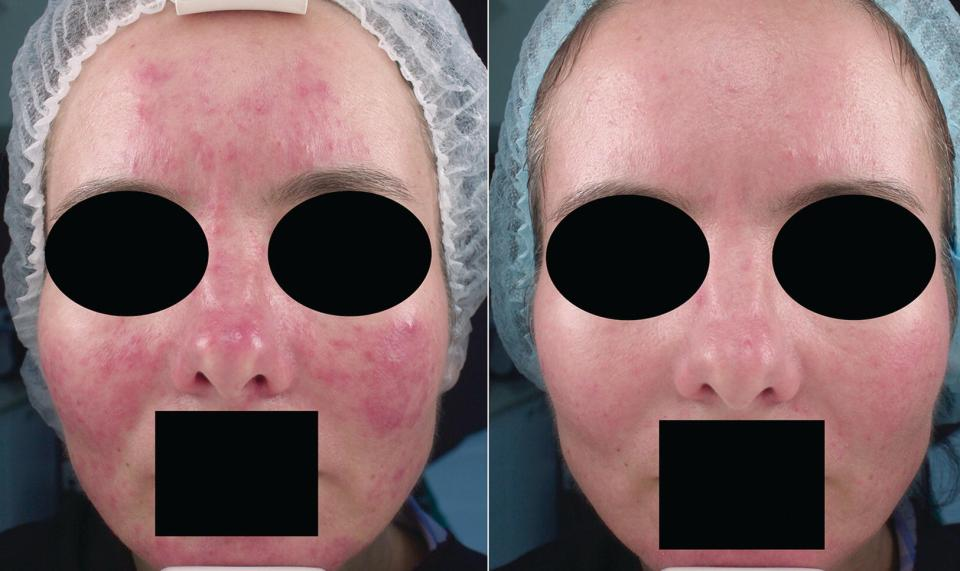 Close-up view of a middle‐aged woman's face with (left) and without (right) rosacea. Eyes and mouth are covered with shaded ovals and rectangle, respectively.