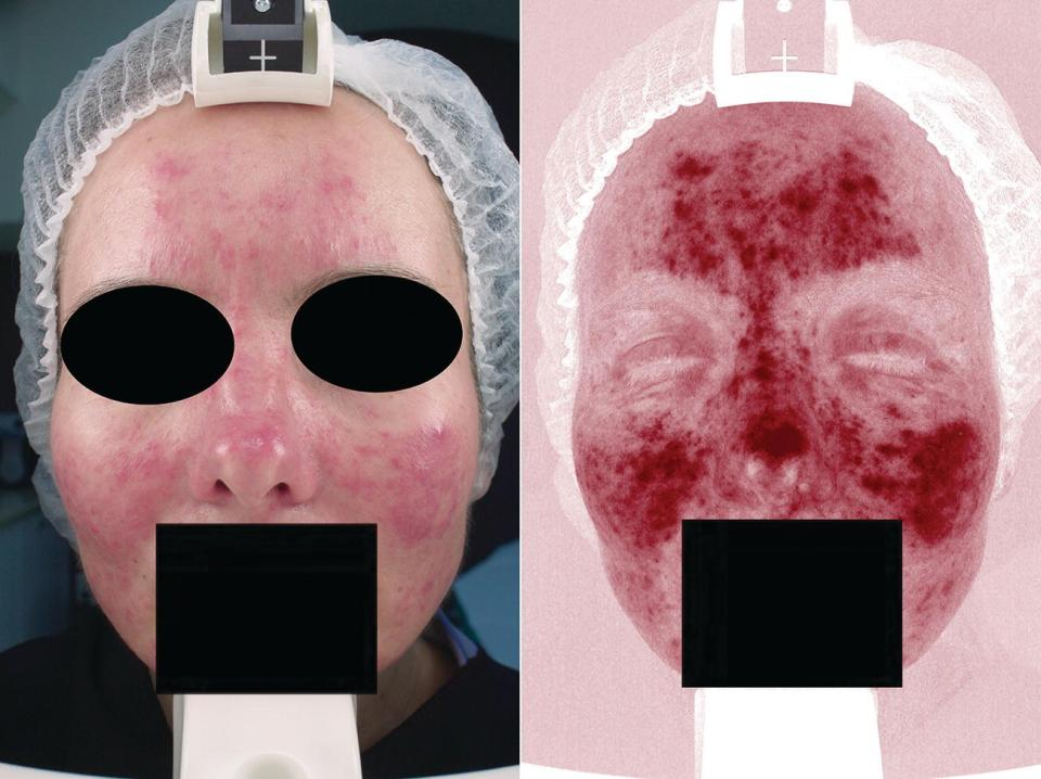 Close-up view of a middle‐aged woman's face (left) and its corresponding laser image (right). Eyes and mouth are covered with shaded ovals and rectangle, respectively.