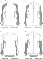 Perioperative Pain Management in Hand and Upper Extremity Surgery