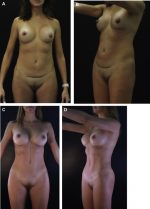 High-Definition Excisional Body Contouring