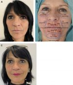 Fat Grafting for Treatment of Facial Scleroderma