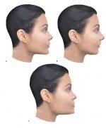 Chapter 1 Facial Assessment