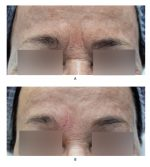 Chapter 9 Filler Injectionof the Glabella