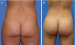 Contouring of the Buttocks
