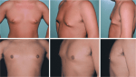 Breast Deformities and Mastopexy