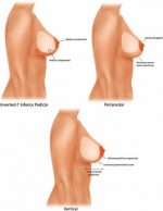 Prospective Comparative Clinical Evaluation of 784 Consecutive Cases of Breast Augmentation and Vertical Mammaplasty, Performed Individually and in Combination