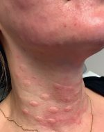 13 Complications of Platelet-Rich Plasma and Microneedling