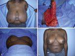 Breast Reduction—Inferior Pedicle Technique