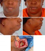 Osseous genioplasty: Dimensional control of the lower facial third
