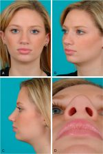 Principles of rhinoplasty