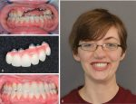 Osseointegration and prosthodontic considerations