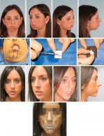 Evaluation and treatment of the adult patient presenting with facial asymmetry