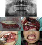Oral Tongue and Mandibular Reconstruction