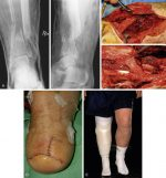 Lower Limb Reconstruction