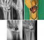 Wrist Pathology