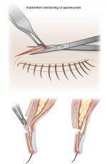 Upper Eyelid Rejuvenation