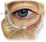 Lower Eyelid and Midcheek Rejuvenation