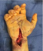 22 Compartment Syndrome