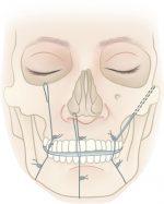 Case 6 Pediatric Mandible Fractures