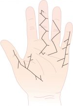 Case 58 Dupuytren's Contracture