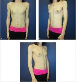 Case 28 Gender Transition (Male-to-Female)