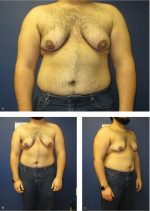 Case 29 Gender Transition (Female-to-Male)
