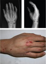 Case 60 Metacarpal and Phalangeal Fractures