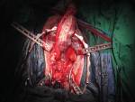 Reconstruction of Panurethral Stricture Disease
