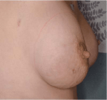 The Surgical Management of Locally Advanced and Stage IV Breast Cancer