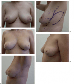 Local Flaps for Breast-Conserving Surgery Defects