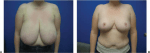 Reduction Mammoplasty With Inverted-T Incision