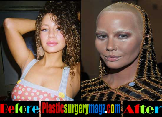Amber Surgery Rose And After