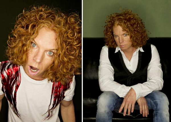 Carrot Top Plastic After Surgery Photo