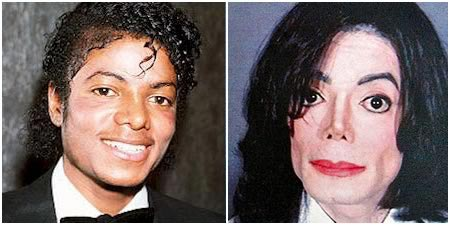 Michael Jackson Plastic Surgery Pictures